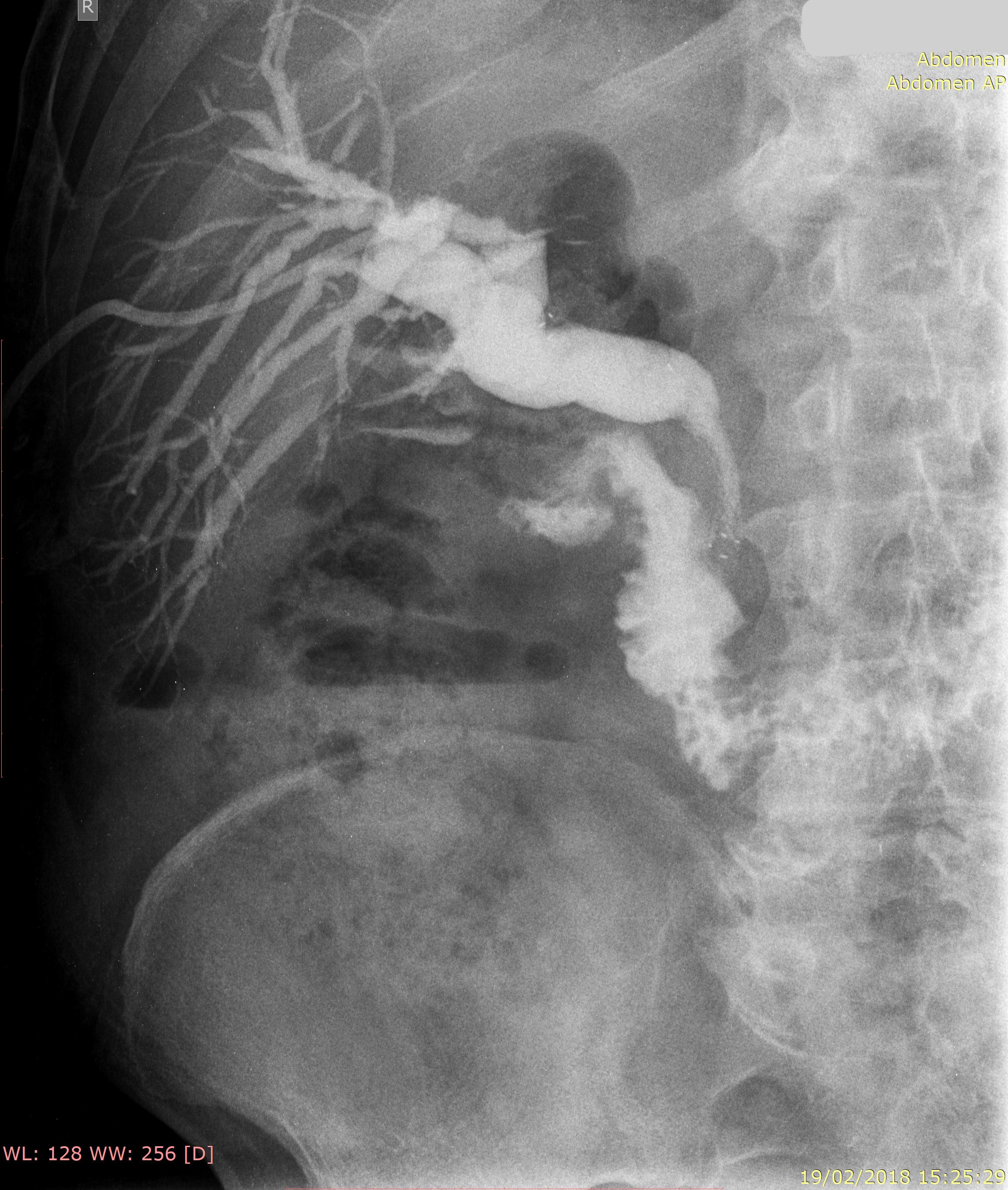 stent-pancreas