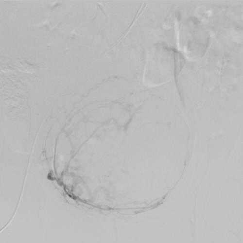 Արյունահոսող արգանդի միոմայի էմբոլիզացիա