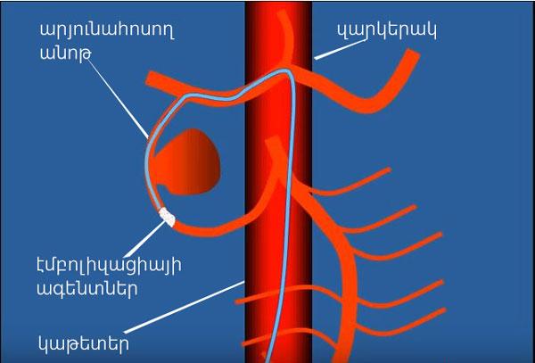 Էմբոլիզացիա